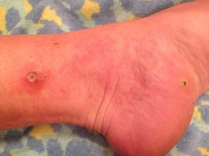 Left Foot Owie